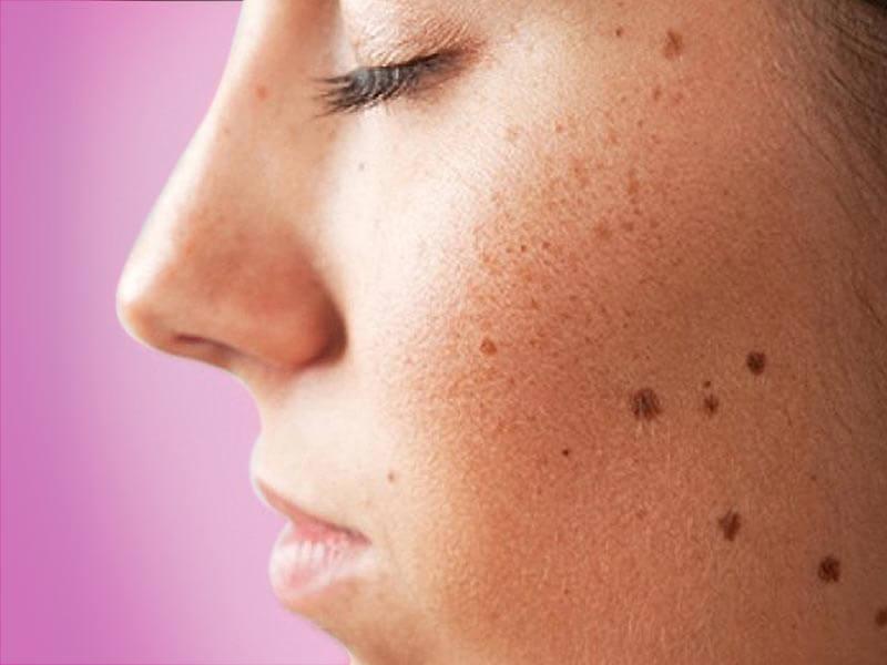 Why Do I Have Dark Spots - Green Geranium
